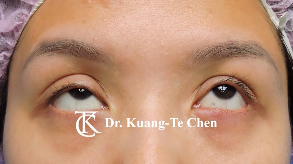雙側提眼瞼肌無力術前14
