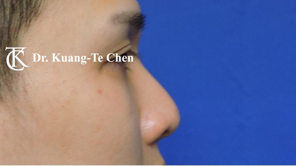 二次隆鼻 Case 5 術前-2