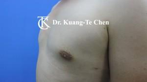 男性女乳症手術術後1