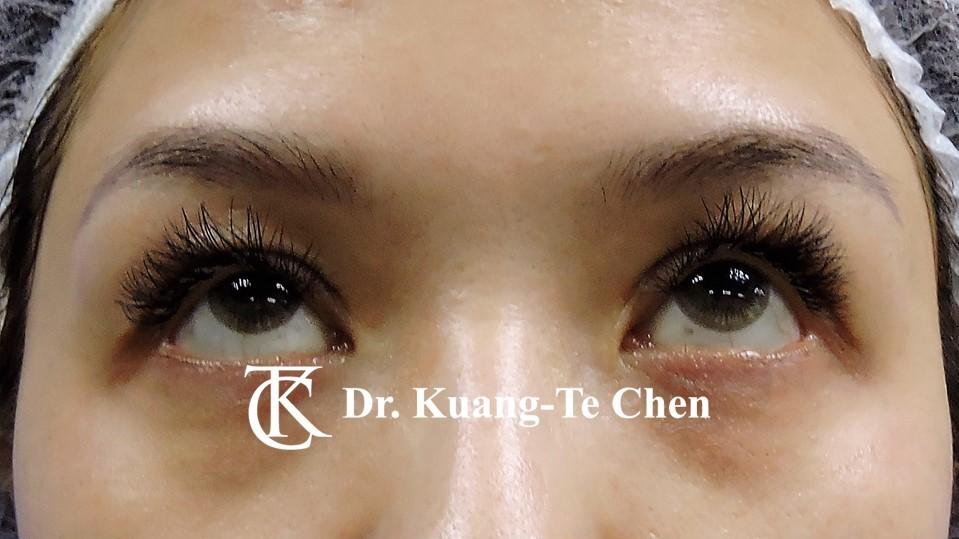 雙側提眼瞼肌無力術後14