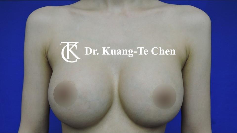 莢膜攣縮(以魔滴)二次隆乳術後-1