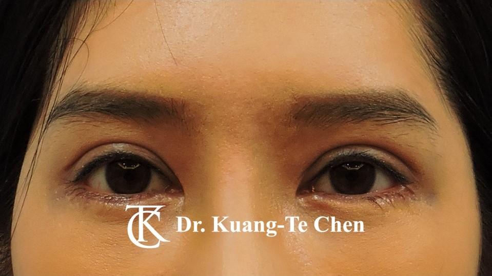 雙側中度提眼瞼肌無力術後6