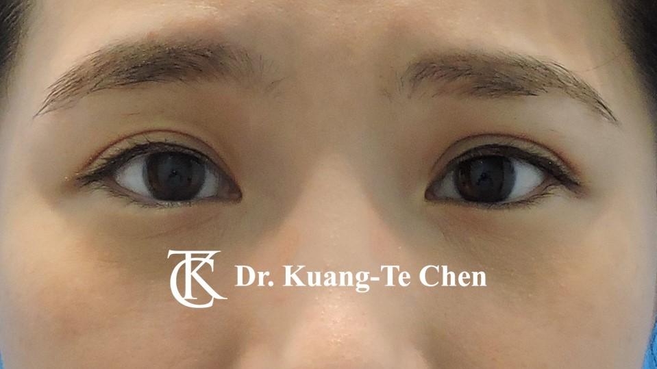 右側輕度提眼瞼肌無力術後4