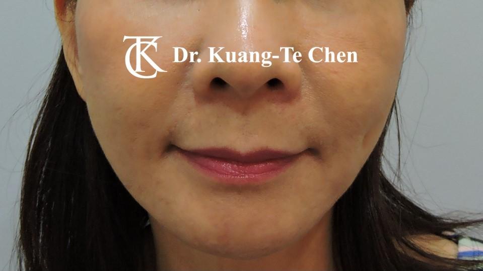嘴邊下垂輪廓線微創雷射溶脂手術陳廣得醫師Case1 術後 -2