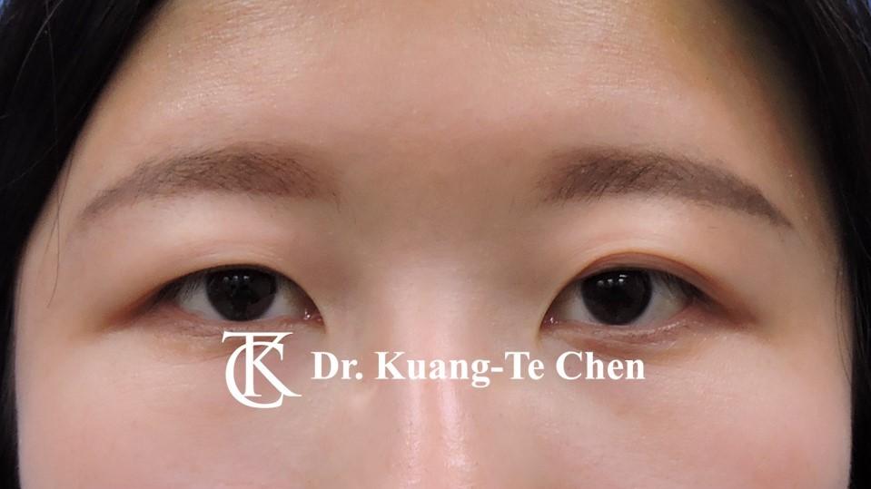 雙側提眼瞼肌無力術前15