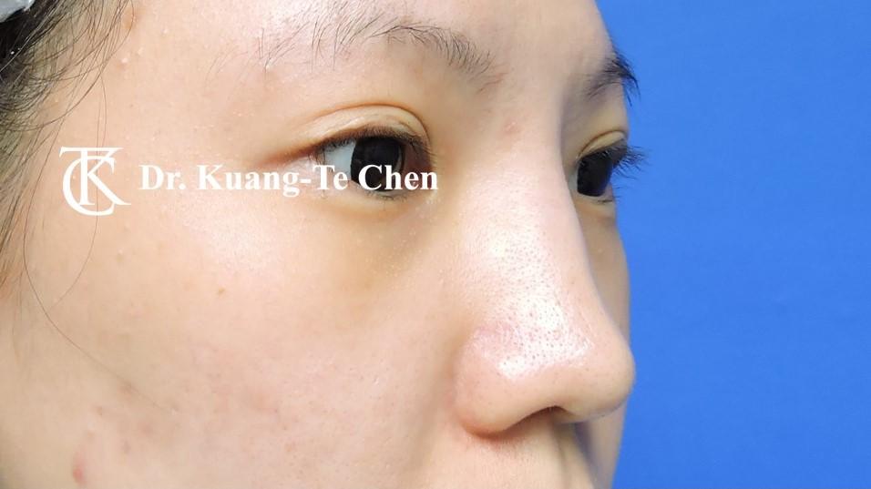 二次隆鼻 Case 6 術前-1