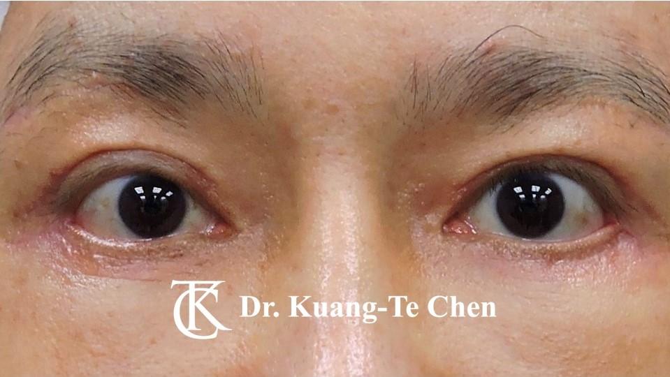 眼瞼外翻矯正手術陳廣得整形外科醫師Case1術後-1