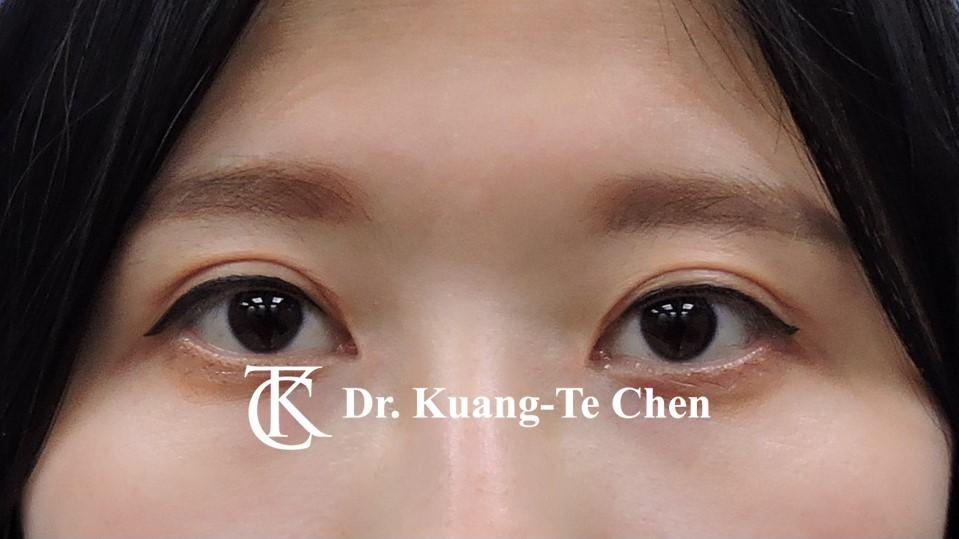 雙側提眼瞼肌無力術後15