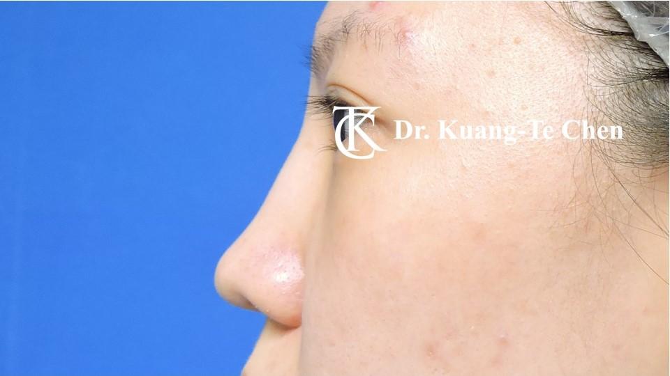 二次隆鼻 Case 6 術前-2