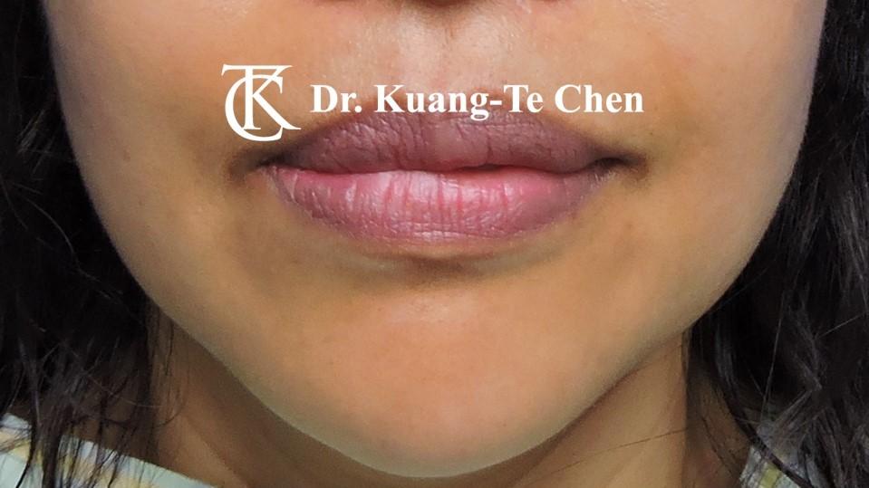 嘴邊下垂輪廓線微創雷射溶脂手術陳廣得醫師Case2 術前-2