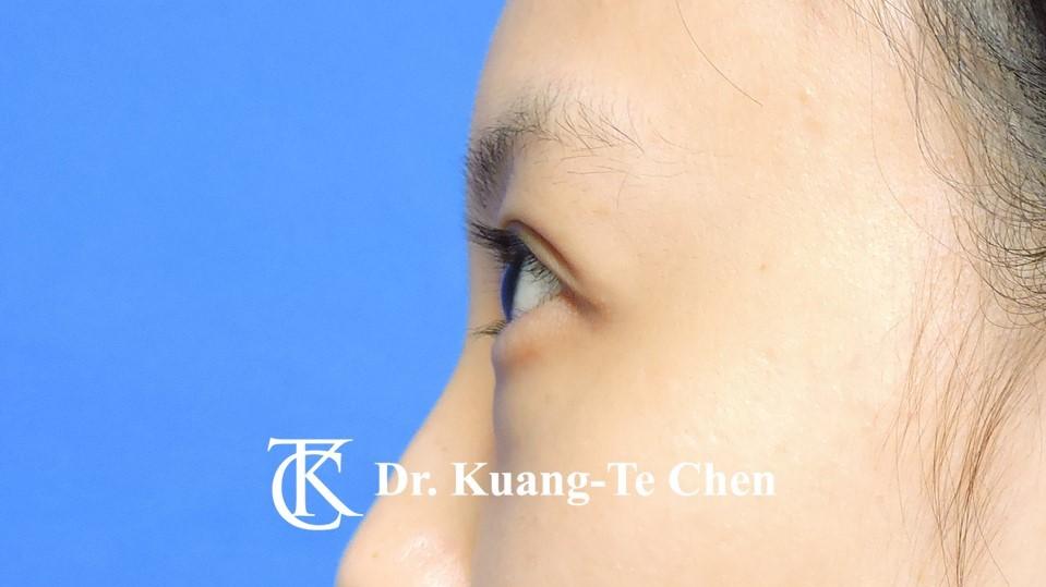 眼袋內開淚溝補脂Case 3 術前-3