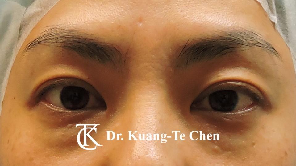 眼袋內開淚溝補脂Case 5 術前-1