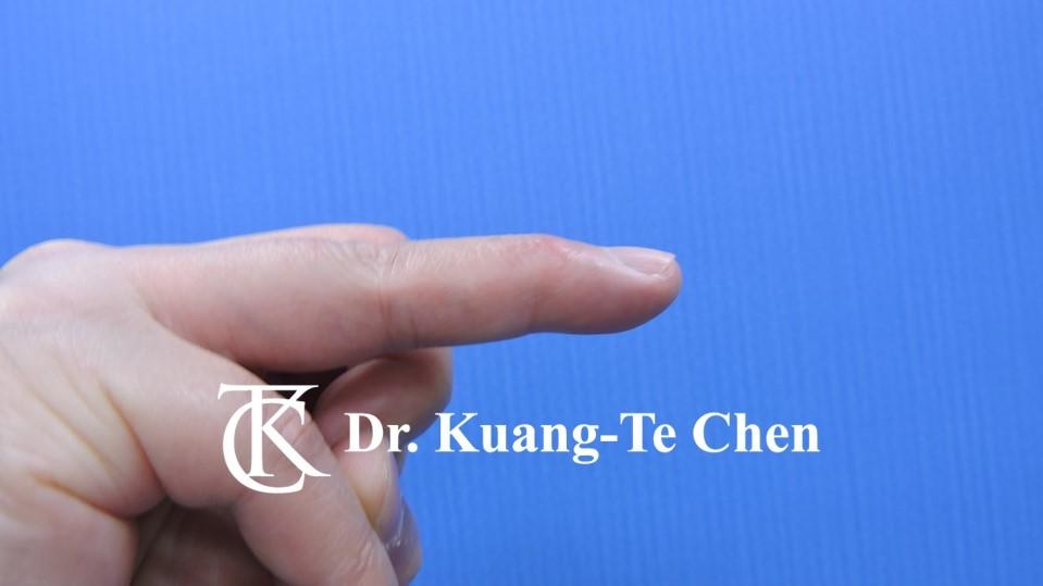 鎚狀指手術Case 1 術後-1