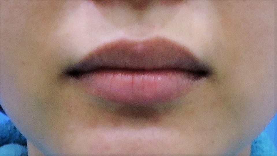 上唇修唇合併上下唇珠整型手術前5