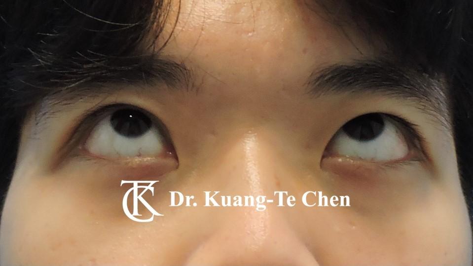 嚴重雙側提眼肌無力術前17