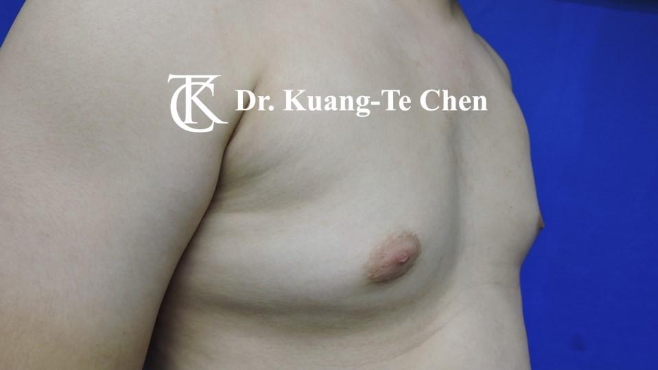 男性女乳症手術術前 陳廣得醫師 18