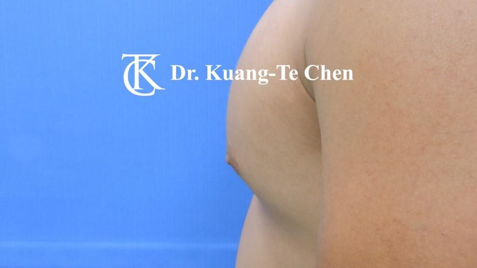男性女乳症手術術前 陳廣得醫師 22