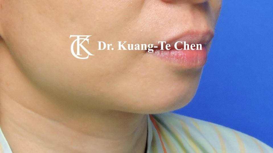 墊下巴手術Case 1術前 -2