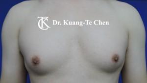 男性女乳症手術術前 陳廣得專業整形11