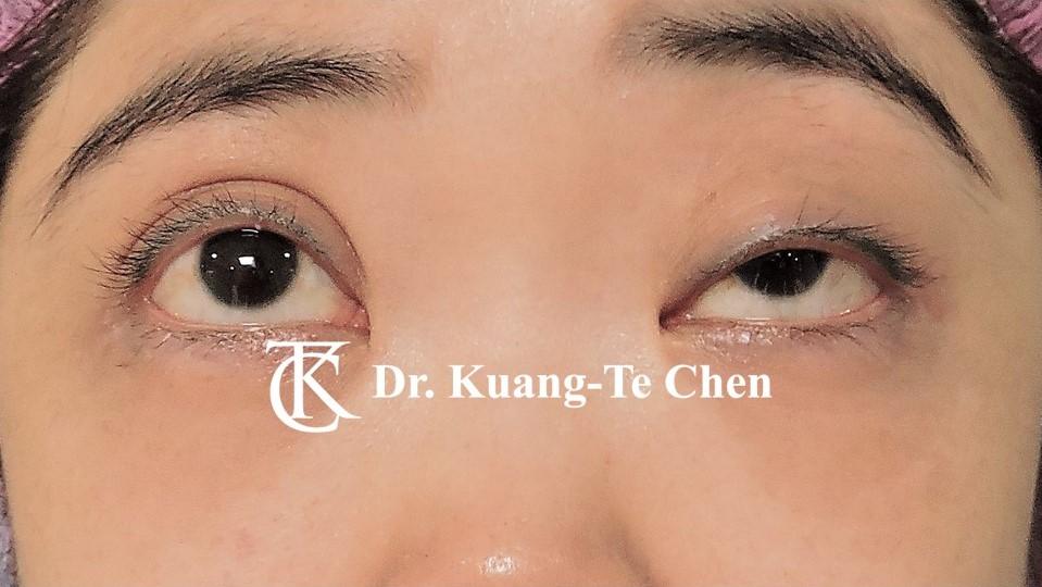 單側提眼瞼肌無力術前3