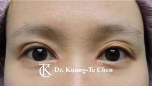 雙眼皮重修沾黏放鬆眼窩補脂術前2