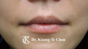 上唇修唇合併上下唇珠整型術前2