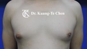 男性女乳症手術術前2