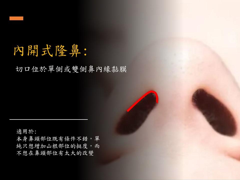內開式隆鼻