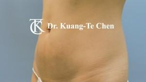 抽脂腰腹環抽術前10