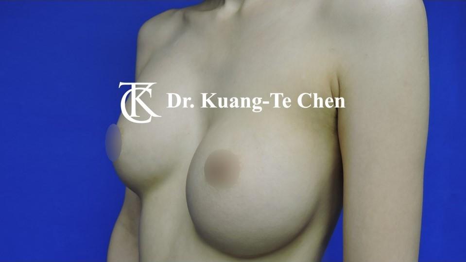莢膜攣縮(以魔滴)二次隆乳術前-2