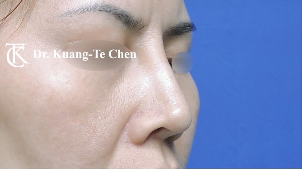 二次隆鼻 Case 1 術前-3