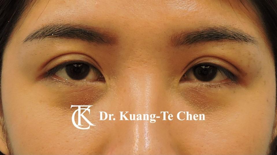 雙側提眼瞼肌無力術前5