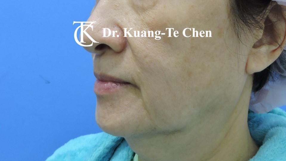 中下臉拉皮 陳廣得醫師專業拉皮手術Case4術前-2
