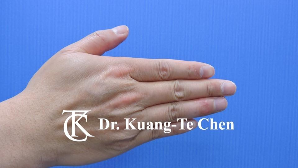 鎚狀指手術Case 1 術後-2