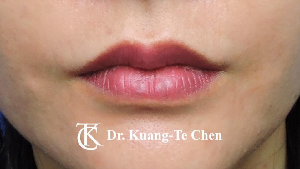 上唇修唇合併上下唇珠整型手術後5