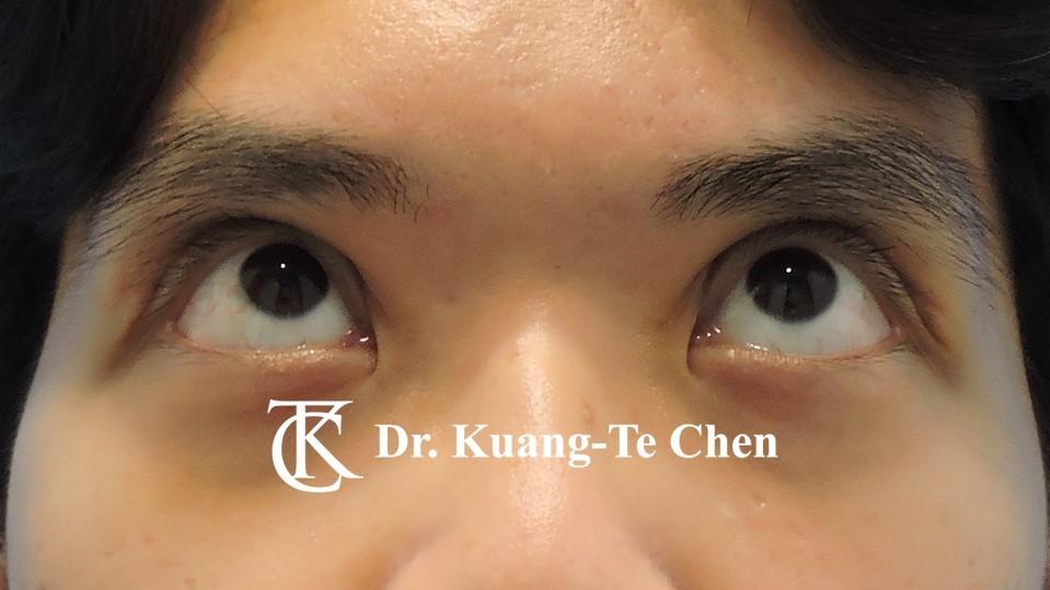 嚴重雙側提眼肌無力術後17