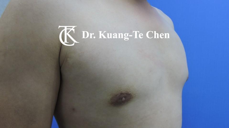 男性女乳症手術術後 陳廣得醫師 18
