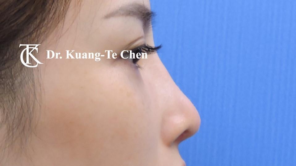 二次隆鼻手術 Case 2 術後-4