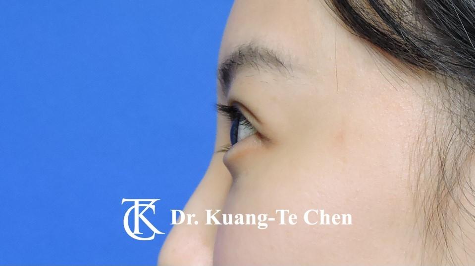 眼袋內開淚溝補脂Case 3 術後-3