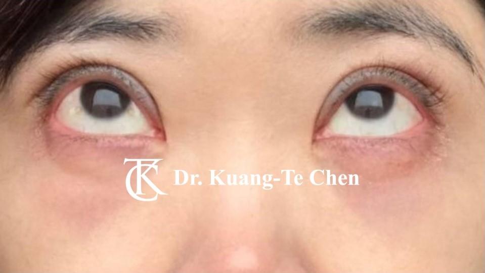 單側提眼瞼肌無力手術後3