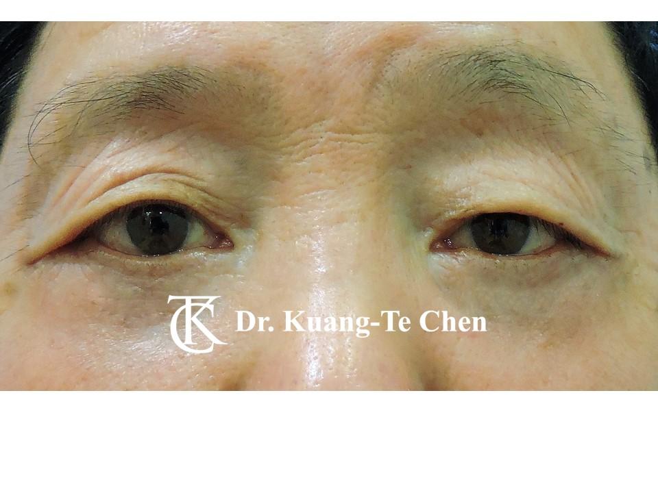 眼瞼外翻-1 矯治術後