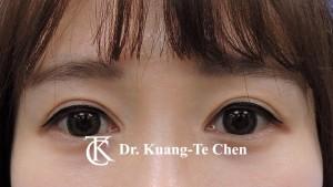 雙眼皮重修沾黏放鬆眼窩補脂術後2