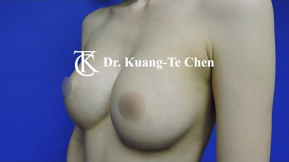 莢膜攣縮(以魔滴)二次隆乳術後-2