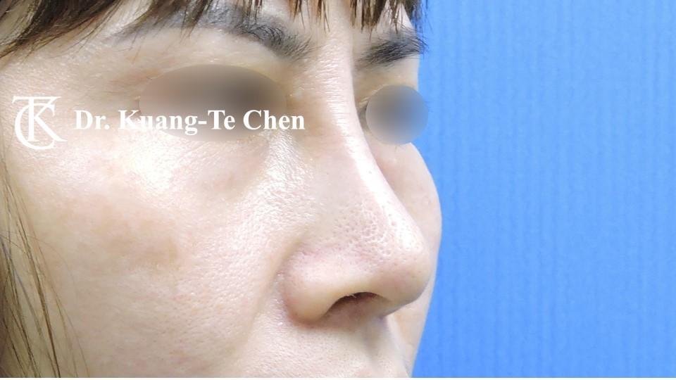 二次隆鼻 Case 1 術後-3