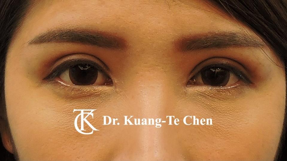 雙側提眼瞼肌無力術後5