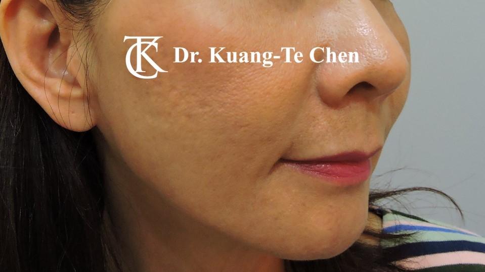 嘴邊下垂輪廓線微創雷射溶脂手術陳廣得醫師Case1 術後 -3