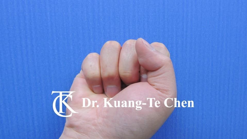 鎚狀指手術Case 1 術後-3