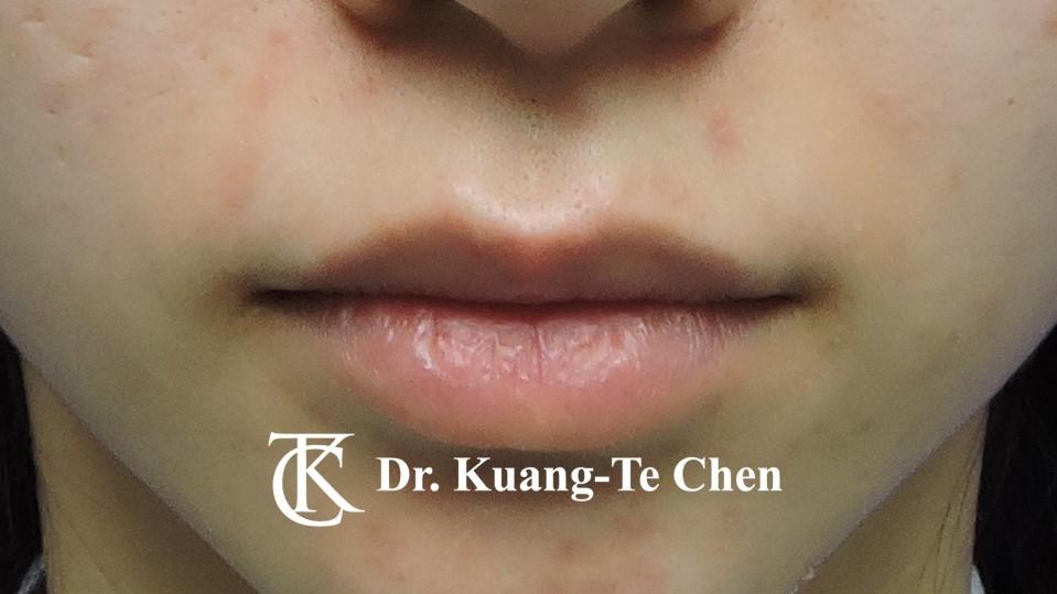 Case 5 上唇唇珠手術前-2