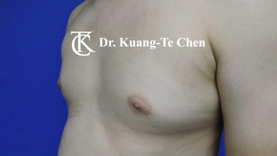 男性女乳症手術術前 陳廣得醫師 16