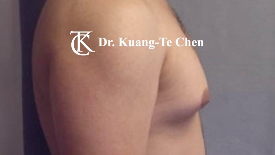 男性女乳症手術術前 陳廣得醫師 20